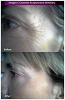 Cosmetic Acupuncture Treatment Before & After 1