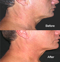 Cosmetic Acupuncture Treatment Before & After 2